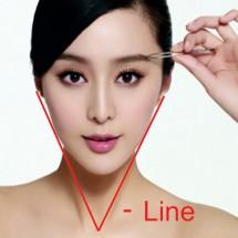 Tạo hình V-line, thon gọn mặt với công nghệ HIFU