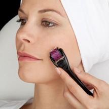 Công nghệ lăn kim trị sẹo lõm, sẹo rỗ