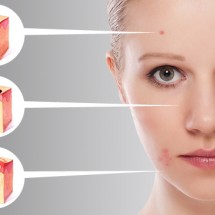 Công nghệ Laser Clinic trị mụn đầu đen