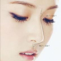 Săn chắc trẻ hóa da vùng rãnh mũi, má, miệng
